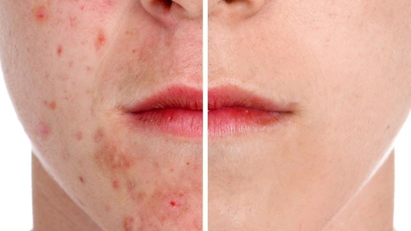 Does dairy cause acne   – how do I cureacne?